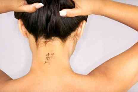 Sheffield Laser - Laser Tattoo Removal Three Sessions - Save 81%