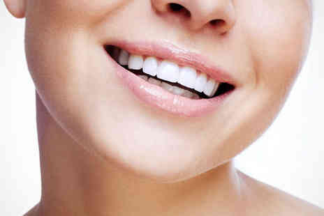 CelebeautySmile White Spa - Laser Teeth Whitening Session - Save 74%