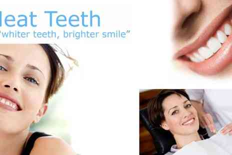 Neat Teeth - Teeth Whitening in Sheffield - Save 76%
