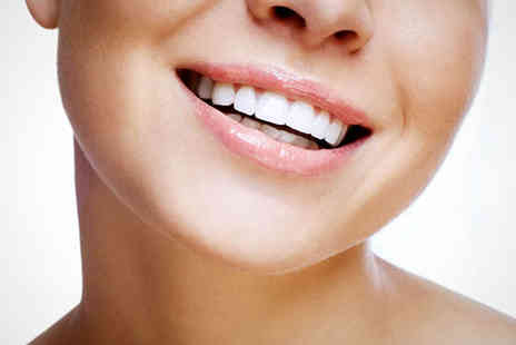 Beaubelle Spa - Teeth Whitening Treatment for One People - Save 85%