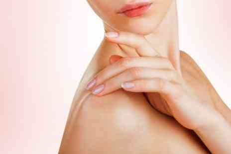 Sheffield Laser - Three Sessions of Thread Vein, Mole or Skin Tag Treatment - Save 74%