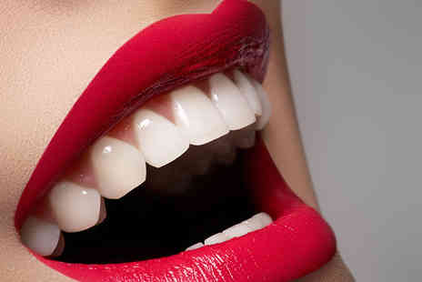 Rite Smile - One hour teeth whitening treatment including a consultation - Save 84%