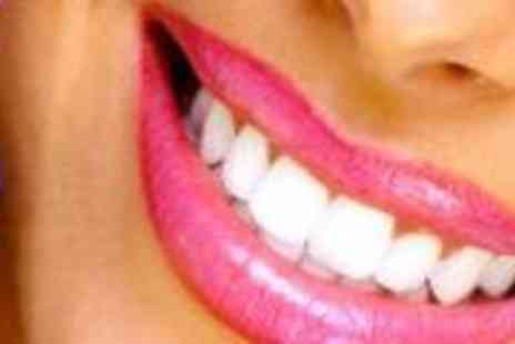 Smile Quest - Professional In Clinic Laser Teeth Whitening - Save 72%
