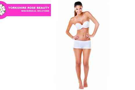 Yorkshire Rose Beauty - 3x Laser Lipolysis Sessions - Save 77%