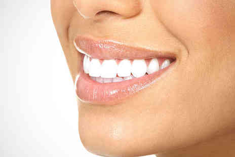 Flawless Teeth Whitening - Teeth Whitening Treatment for One - Save 70%