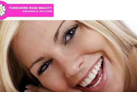 Yorkshire Rose Beauty - Teeth Whitening - Save 37%