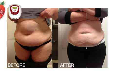 Strawberry Laser Lipo Clinic - Laser Lipo 3 Sessions - Save 50%