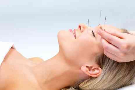 Mandarin Medical Centre - 60 minute acupuncture and acupressure massage - Save 50%