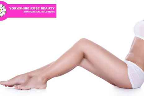 Yorkshire Rose Beauty - 6 IPL Hair Removal Sessions - Save 86%