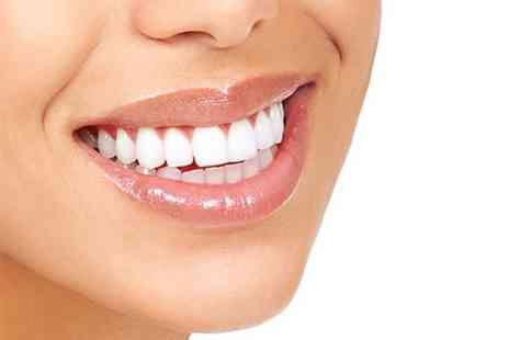 All Your Life, UK - Bleach Free LED Teeth Whitening - Save 81%