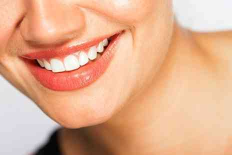 Miami Smile - Teeth Whitening Treatments - Save 67%