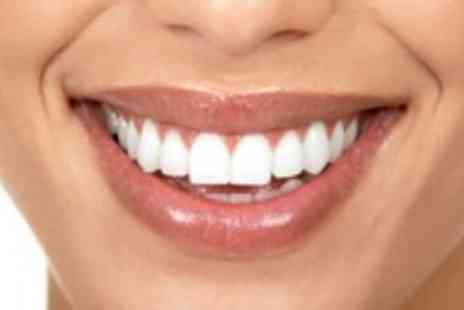 I Want White Teeth - Non peroxide teeth whitening kit - Save 84%