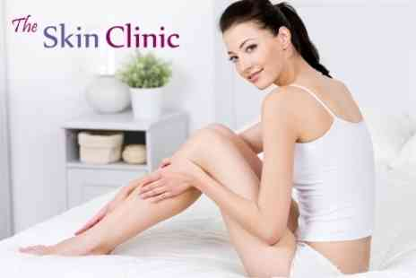 The Skin Clinic - Six IPL Sessions on Three Small Two Medium or One Large Area  - Save 89%