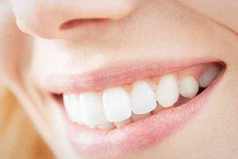 1 Smile Dental Clinic - Dental Crowns or Veneers With X Rays - Save 56%