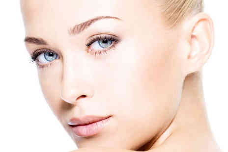 Richmond Green Laser & Beauty - Four Sessions of Facial Thread Vein Reduction - Save 77%
