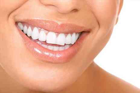All Your Life - Teeth Whitening for All Your Life - Save 71%