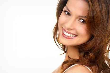 Deddington Dental Practice - Composite Dental Veneers - Save 61%