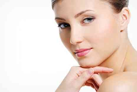 Beauty at Inches - Microdermabrasion One Sessions - Save 58%