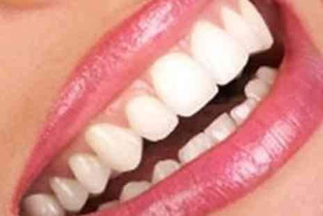 Whiter Smile Studio - In Practice Teeth Whitening Session for One - Save 80%