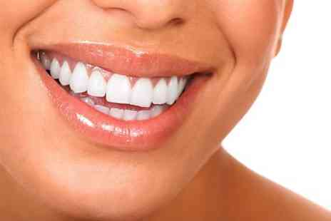 White & Beauty - Teeth Whitening With Consultation - Save 85%