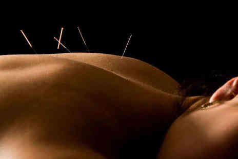 The Oriental Medicine Practice - One Acupuncture Session with Full Consultation - Save 70%
