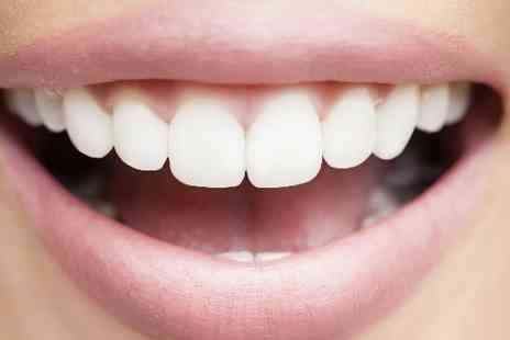 Karma Therapy - Healthy, Bright and White Teeth Whitening Treatment - Save 51%