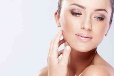 New Laser Tec - Thread Vein Acne or Skin Pigmentation Laser Treatments - Save 52%