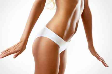 J2A - Six Sessions of Laser Lipo  - Save 80%