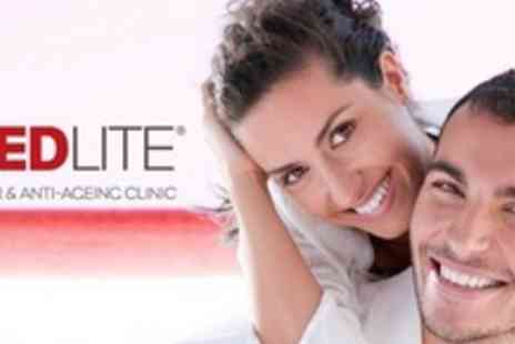 Red Lite Clinic - Beyond White Teeth Whitening - Save 68%