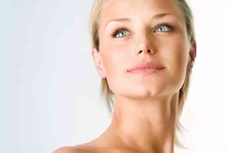 purple valentine -  One Sessions of Microdermabrasion - Save 71%