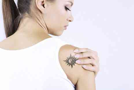 IceSmooth Beauty - Four Sessions of Laser Tattoo Removal - Save 50%