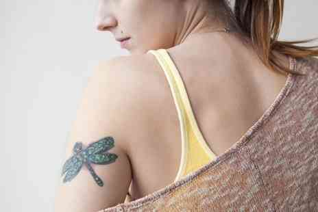 Boutique and Tanning -  Four Sessions of Laser Tattoo Removal - Save 50%