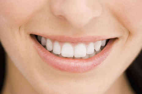 London Smile Kraft - Hour Long Laser Teeth Whitening Treatment with a Dentist - Save 80%