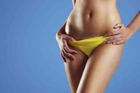 Slim n Tone - Waxing Hollywood or Brazilian - Save 40%