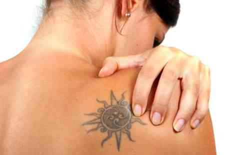 Ink rasers - Four sessions of tattoo reduction on a large area - Save 80%