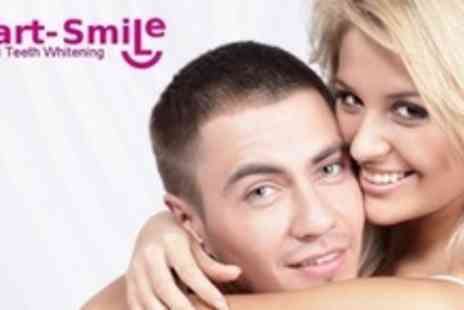 Smart Smile - Laser Teeth Whitening - Save 80%