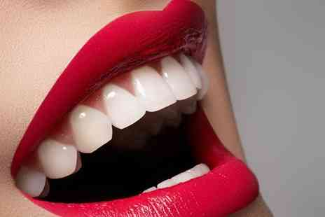 Imperial Smile Beauty - One  session of LED teeth whitening including  consultation - Save 78%