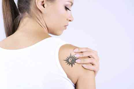 Erase - Four  Sessions of Laser Tattoo Removal - Save 73%