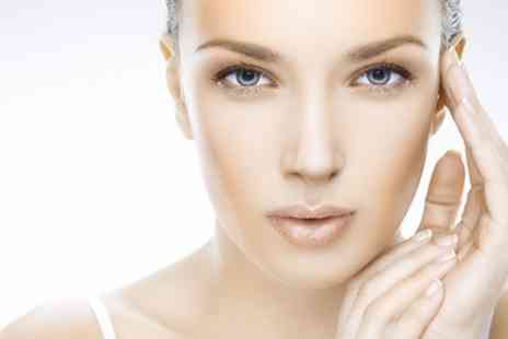 Vital Cosmetics - Two Sessions of Thread Vein Treatment - Save 83%
