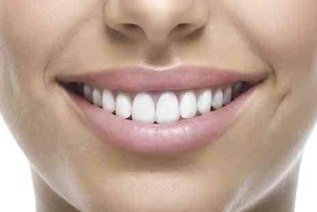 Miami Smile - One Hour Teeth Whitening Session  - Save 80%