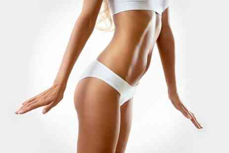 Doctor Lipo - One Session of Cryogenic Lipolysis - Save 75%