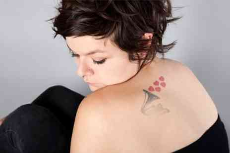 Tatts Away - Three Sessions to Tattoo Removal - Save 61%