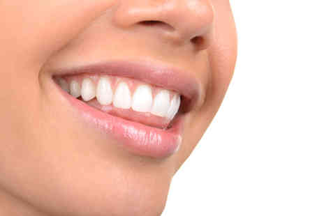 NW1 Dental Care - 60 minute laser teeth whitening session - Save 72%