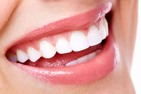 Synergy Dental Clinic - 30 min laser teeth whitening session - Save 89%