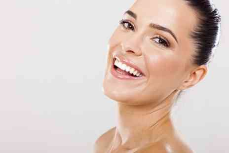 NW1 Dentalcare - Six Month Smiles Cosmetic Braces and Teeth Whitening  - Save 61%