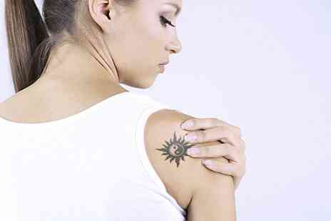 Lasrme - Three  Sessions of  Laser Tattoo Removal  - Save 50%