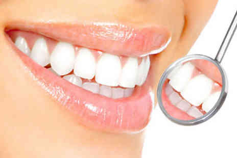 Express Cosmetic Teeth Whitening Wales - £49 for one hour of teeth whitening including a 15-minute consultation - Save 81%