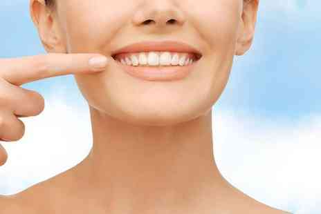 Aura Dental Spa - Full dental check with a polish - Save 81%