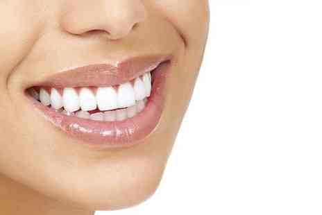 White and Beauty - One Hour Teeth Whitening Treatment - Save 85%