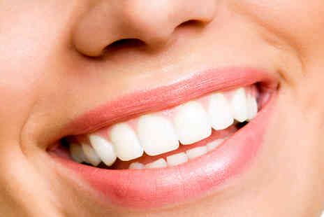 Smile Express - Get results with Smile Express Teeth Whitening  - Save 51%